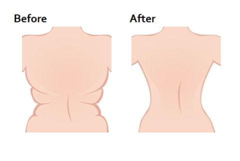 Before and After Back Fat